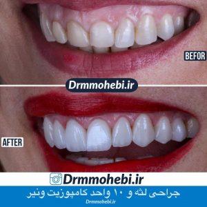 کامپوزیت دندانی چیست
